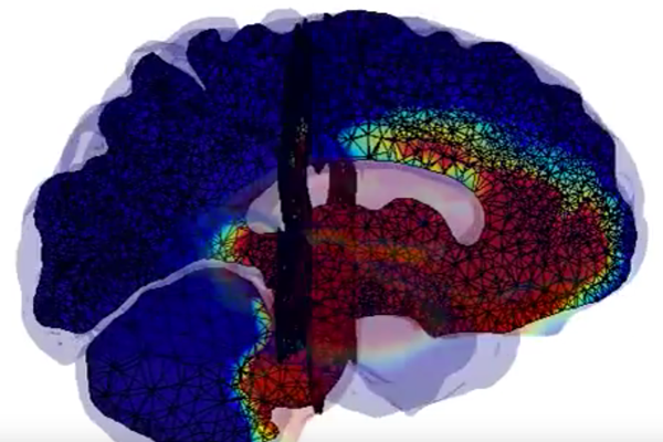 Screenshot from video showing model of the brain wiht multicolored overlay representing spread of neurodegenerative disease.
