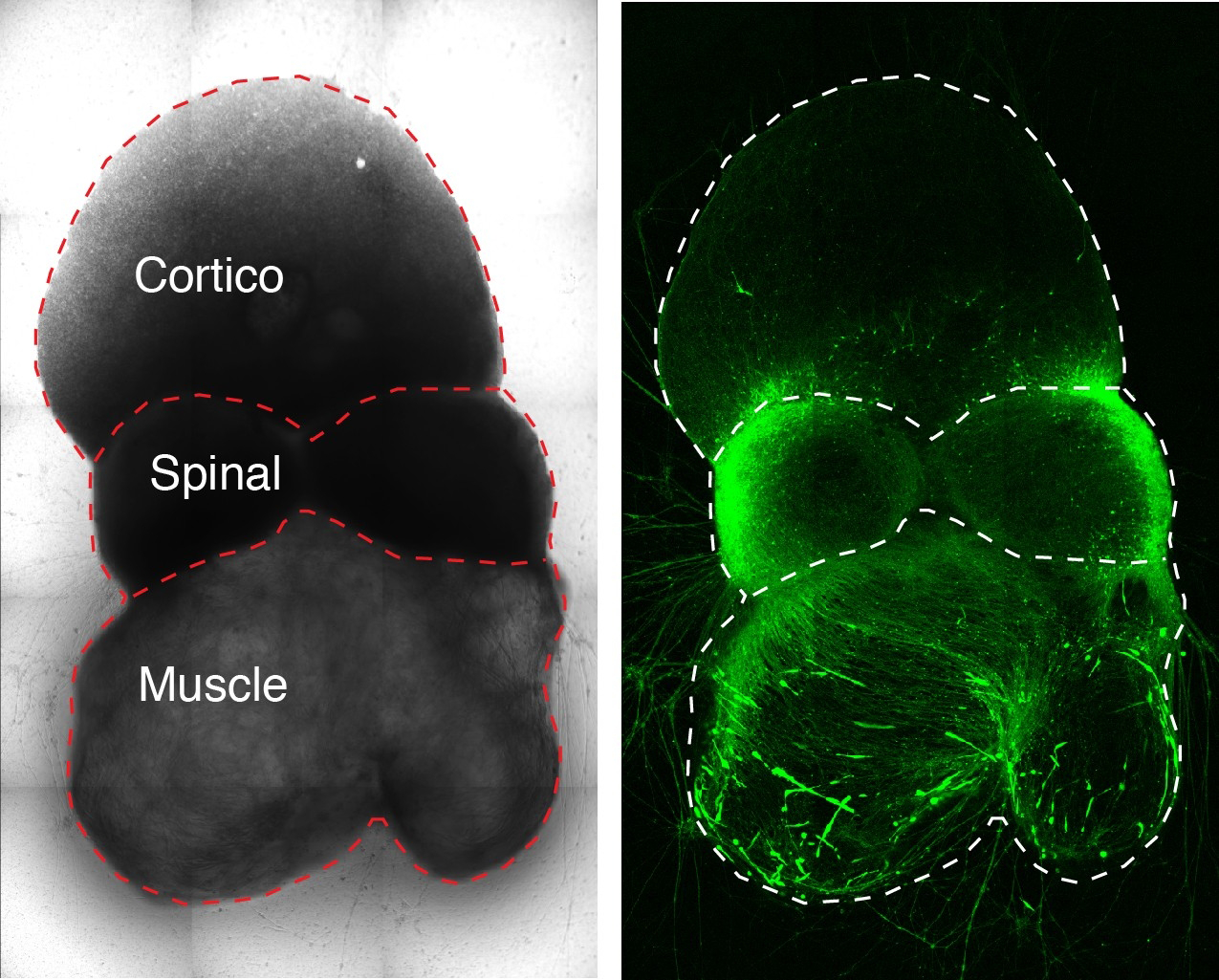 """on the right, a glowing green body comprising three shapes, with a rounded one at the top, a band in the middle, and another rounded shape at the bottom. On the left, outlines of the shapes label them as """"Cortico"""" at the top, """"Spinal"""" in the middle, and """"Muscle"""" at the bottom."""