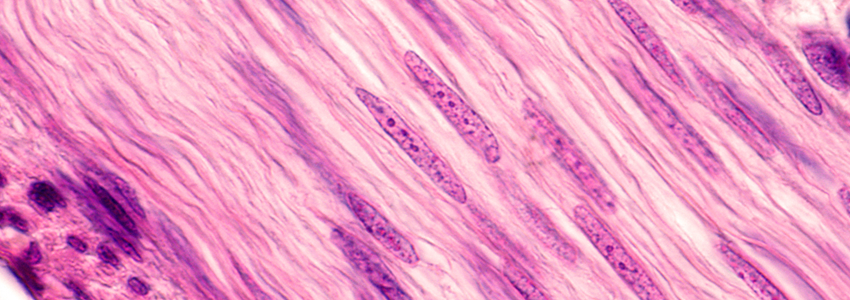 Image of smooth muscle cells in pink, with long nuclei showing darker purple.