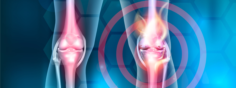 Graphic 3d image showing person's knees, with one circled in red, against abstract background.