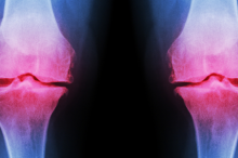 Graphic of knee joints lit up in red on an X-ray to indicate arthritis.