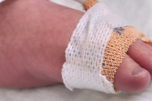Photo of a baby's foot wrapped with a bandage to secure a tube.