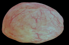 Screenshot from video of 3D bladder reconstruction.