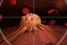 Graphic illustration of a cancer cell inside of crosshairs.