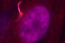 Photo of a retinal pigmented epithelial cell, with the nucleus in magenta and cilium in pink.