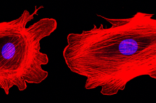 Confocal microscopy imaging of two cancer cells with cytoskeletal protein actin highlighted in red, showing structure.