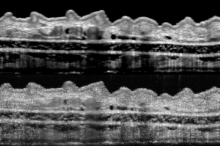 Image of two scans of the same scan of a mouse's ear, with the bottom having significantly finer resolution.
