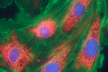 Graphic image of fibroblast cells with cell components colored.