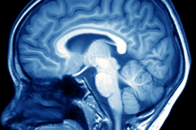 Imge of an MRI of a person's brain depicted in blue and white.