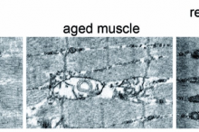 "Compilation of 3 labeled images: first image is of ""young muscle"", showing grid of interconnected fibers; second is of ""aged muscle"", which shows damage in the center where fibers have disconnected and there are gaps; third image is ""rejuvenated muscle"", which shows more tightly woven structure similar to the young muscle."
