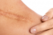 Photo of a person laying their hand on their shoulder next to a large scar.