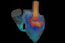 Graphic image of Dr. Marsden's blood flow simulator, showing colorful simulated flows moving through a heart.