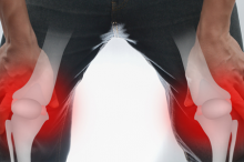 Photo of a man holding his knees, with 3D superimposed structure of his bones with red around the knees to show inflammation.