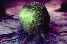 Graphic illustration of cancer cell indicated in green, against a purple background.